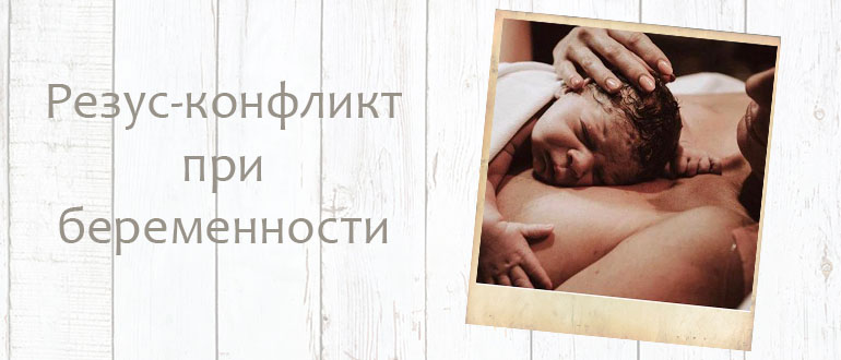 Конфликт резус-фактора при беременности