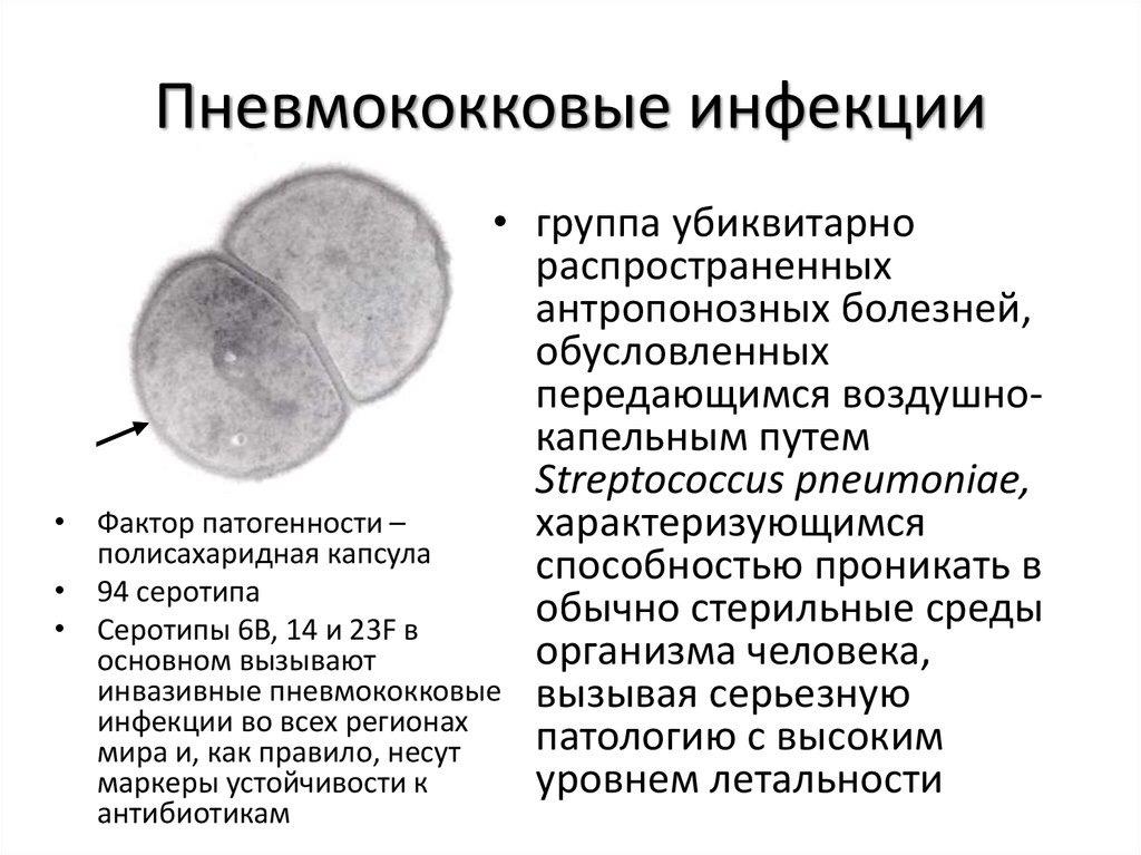 Пневмококковые инфекции