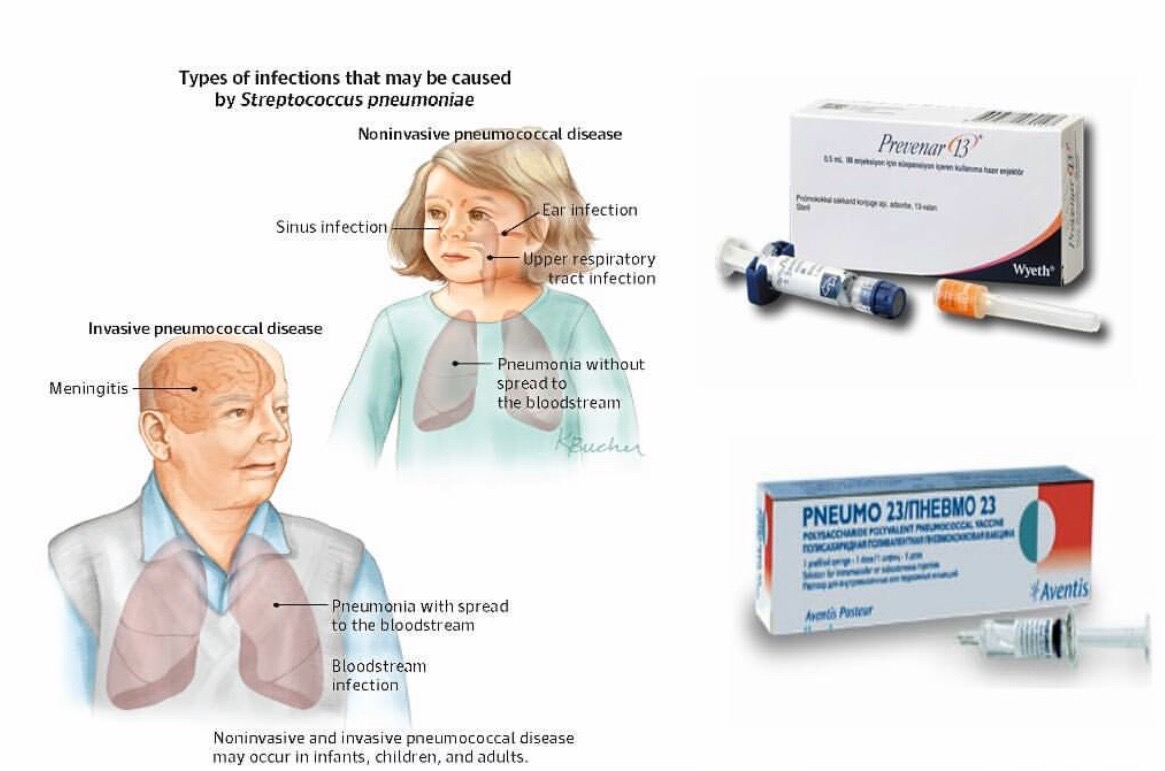 Пневмококковая инфекция