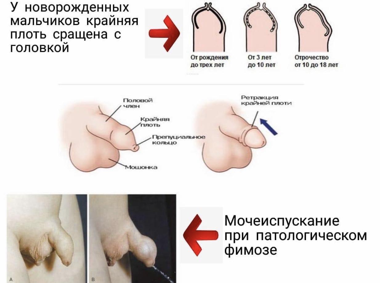 патологический фимоз