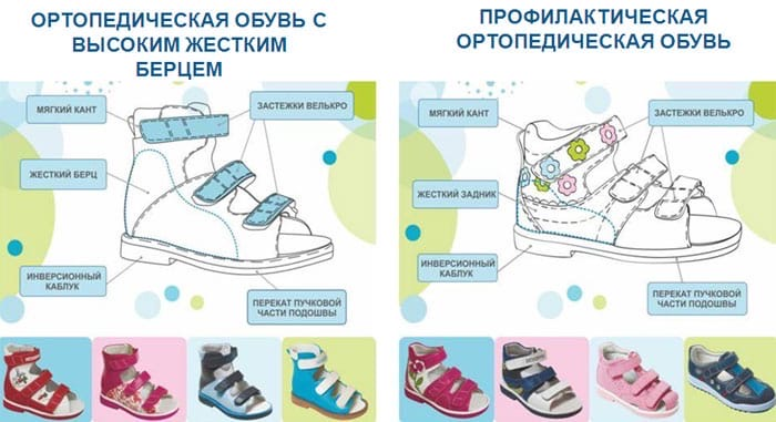 Как выбрать обувь для первых шагов ребёнка. Нужна ли ортопедическая обувь